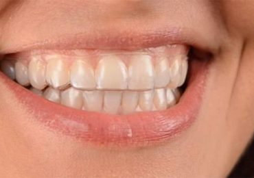 woman wearing clear correct invisible aligners
